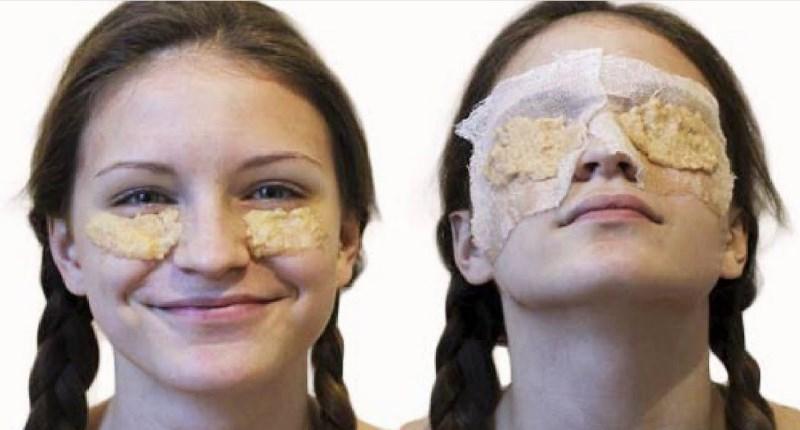 маска из картофеля от мешков под глазами